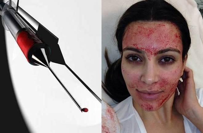 Vampirski tretman za pomlađivanje