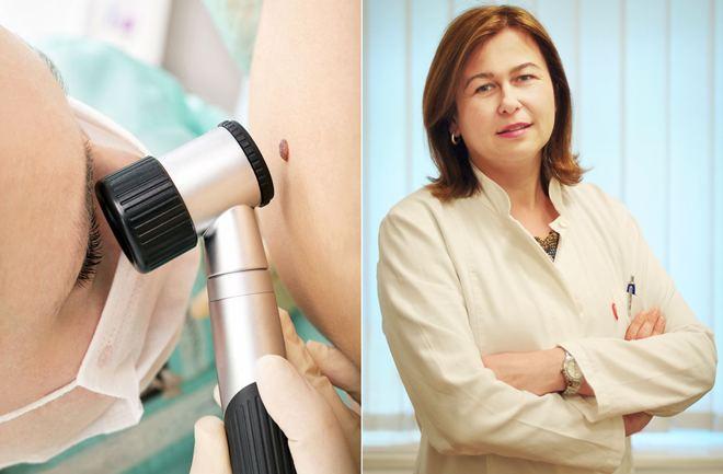 Istine i zablude o melanomu