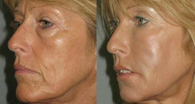 how to get rid of wrinkles around mouth and cheeks