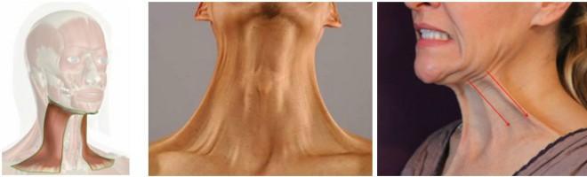 platizma – veliki vratni mišić koji vuče kožu lica prema dolje