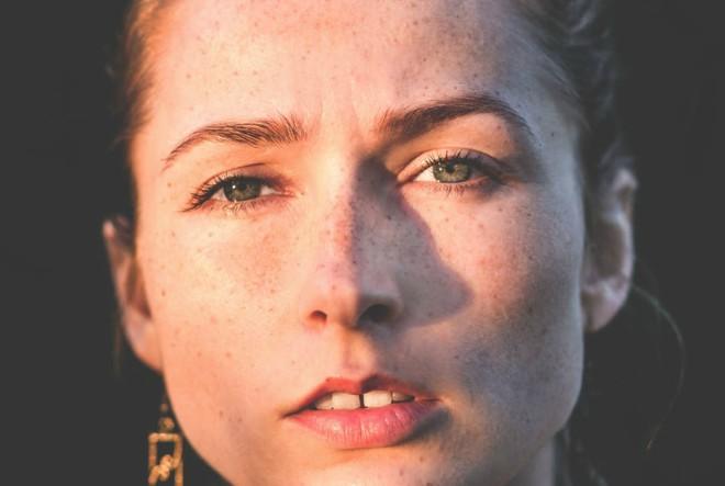 5 situacija u kojima je Olival serum za hiperpigmentaciju izvrstan odabir