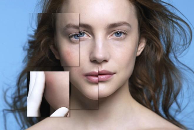 Znate li da se većina alergija manifestira na koži?