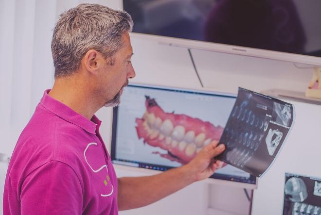 Zašto je bitno ozbiljno shvatiti nedostatak zuba?